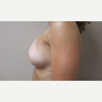 Breast Augmentation after 3650188