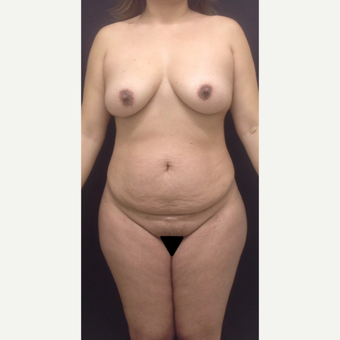 35-44 year old woman treated with Mommy Makeover before 3341230