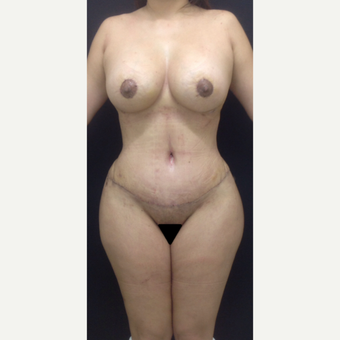 35-44 year old woman treated with Mommy Makeover after 3341230