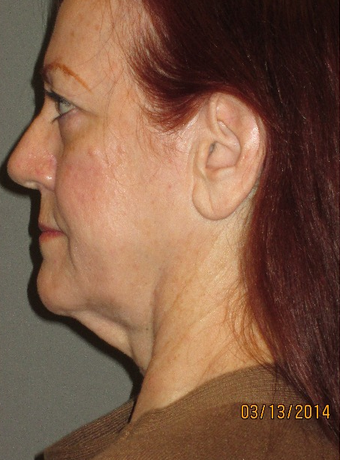 45-54 year old woman treated with Neck Lift before 2241519