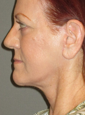 45-54 year old woman treated with Neck Lift after 2241519