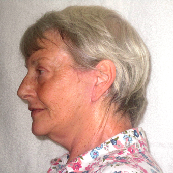 65-74 year old woman treated with Facelift after 3602947