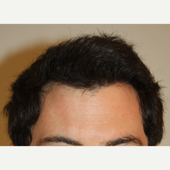 25-34 year old man treated with FUE Hair Transplant after 3645953