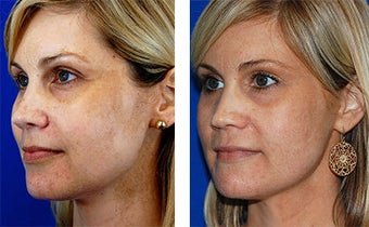 42 yo Active FX CO2 laser facial for sun damage and pigment