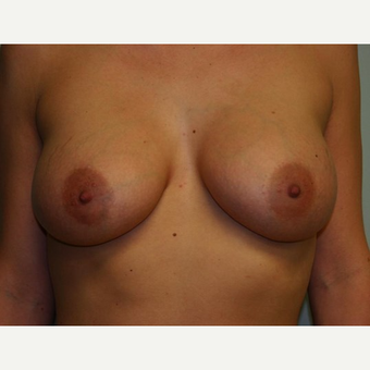 Breast Augmentation after 3560672