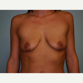 Breast Augmentation before 3560672