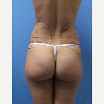 35-44 year old woman treated with Smart Lipo before 3098118