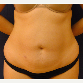 35-44 year old woman treated with Tummy Tuck before 3240891