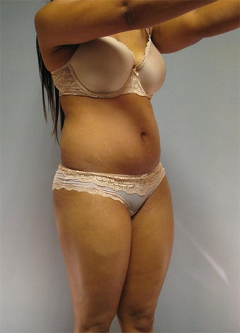 30-Year-Old Female Tummy Tuck / Liposuction  before 1507543