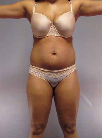 30-Year-Old Female Tummy Tuck / Liposuction  1507543