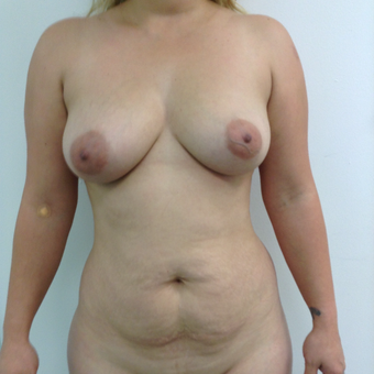 25-34 year old woman treated with Mommy Makeover before 3767370
