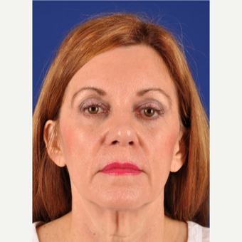 High SMAS Facelift, lateral temporal browlift, upper blepharoplasty, fat transfer