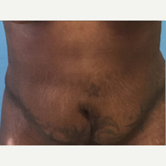 Liposuction after 3278938