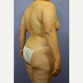 35-44 year old woman treated with Weight Loss after 3329154