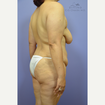35-44 year old woman treated with Weight Loss before 3329154