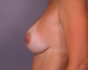 Breast Implant Correction before 281299