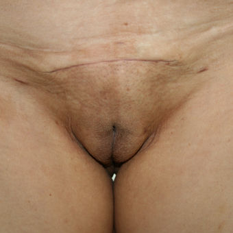 25-34 year old woman treated with Supra Pubic Lift after 2806899
