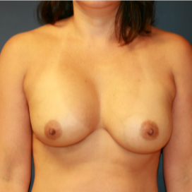 35-44 year old woman treated with Breast Implant Revision before 3555557