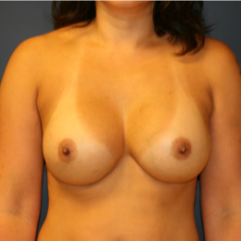 35-44 year old woman treated with Breast Implant Revision after 3555557