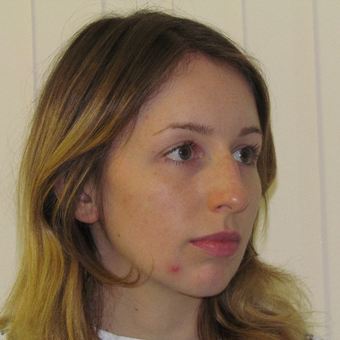 18-24 year old woman treated with Rhinoplasty before 3337784