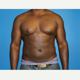 35-44 year old man treated with Smart Lipo after 2772218