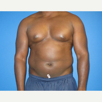 35-44 year old man treated with Smart Lipo before 2772218