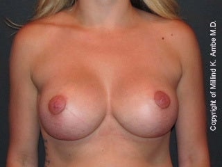 29 Year Old Female Breast Revision Patient