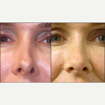 35-44 year old woman treated with Non Surgical Nose Job before 3847095
