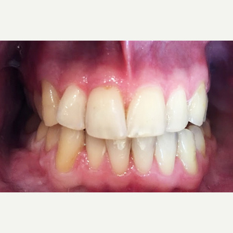 35-44 year old man treating with Gum recession after 3096977