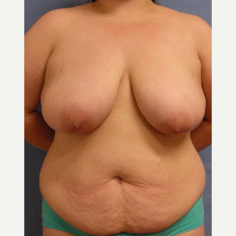 25-34 year old woman treated with Breast Reconstruction before 3650626