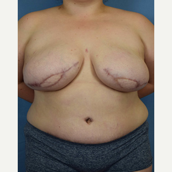 25-34 year old woman treated with Breast Reconstruction after 3650626
