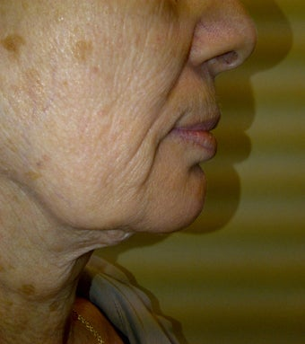 lower face lift approach can improve both the jaw and neck appearance before 1039229