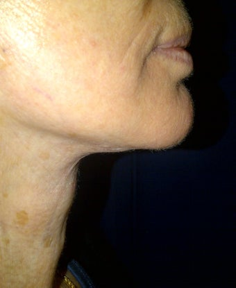 lower face lift approach can improve both the jaw and neck appearance after 1039229