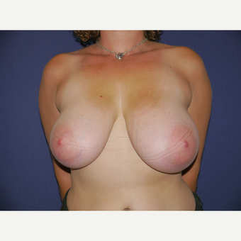 25-34 year old woman treated with Breast Reduction before 3149557