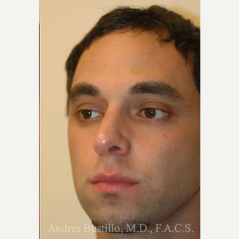 29 year old man treated with Rhinoplasty after 3462398
