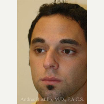 29 year old man treated with Rhinoplasty before 3462398