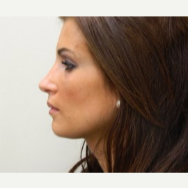 25-34 year old woman treated with Rhinoplasty after 3370732