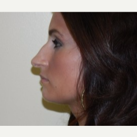 25-34 year old woman treated with Rhinoplasty before 3370732