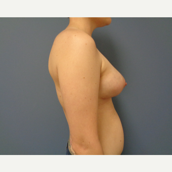 25-34 year old woman treated with Breast Lift with Implants after 3737994