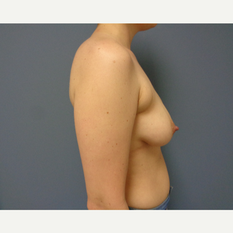 25-34 year old woman treated with Breast Lift with Implants before 3737994