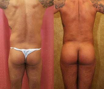 Buttock Augmentation for Men with fat grafting