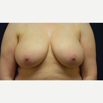 45-54 year old woman treated with Breast Reduction before 3467200