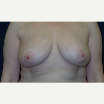 45-54 year old woman treated with Breast Reduction after 3467200