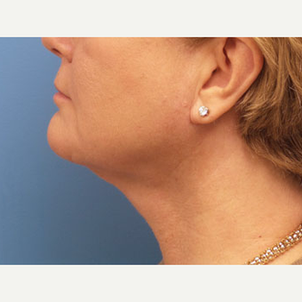 54 year old woman treated with Neck Lift after 3140383