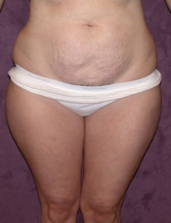 Tummy Tuck before 267722