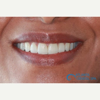 45-54 year old woman treated with Porcelain Veneers after 2388783