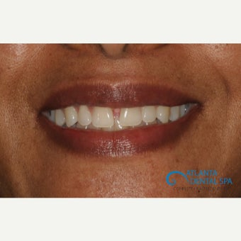 45-54 year old woman treated with Porcelain Veneers before 2388783