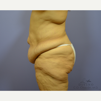 45-54 year old woman treated with Tummy Tuck before 3422066