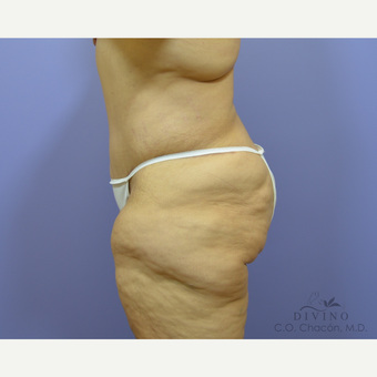 45-54 year old woman treated with Tummy Tuck after 3422066
