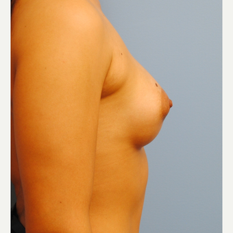 250 cc silicone implants - submuscular = A to full B after 3077439